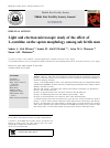 Scholarly article on topic 'Light and electron microscopic study of the effect of L-carnitine on the sperm morphology among sub fertile men'