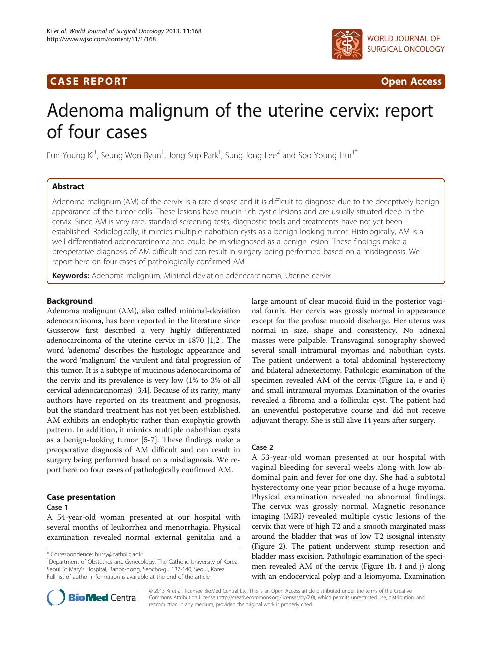 Adenoma malignum of the uterine cervix: report of four cases