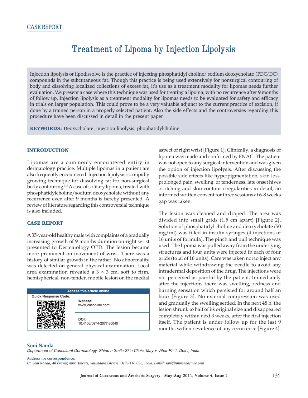 Treatment of lipoma by injection lipolysis – topic of