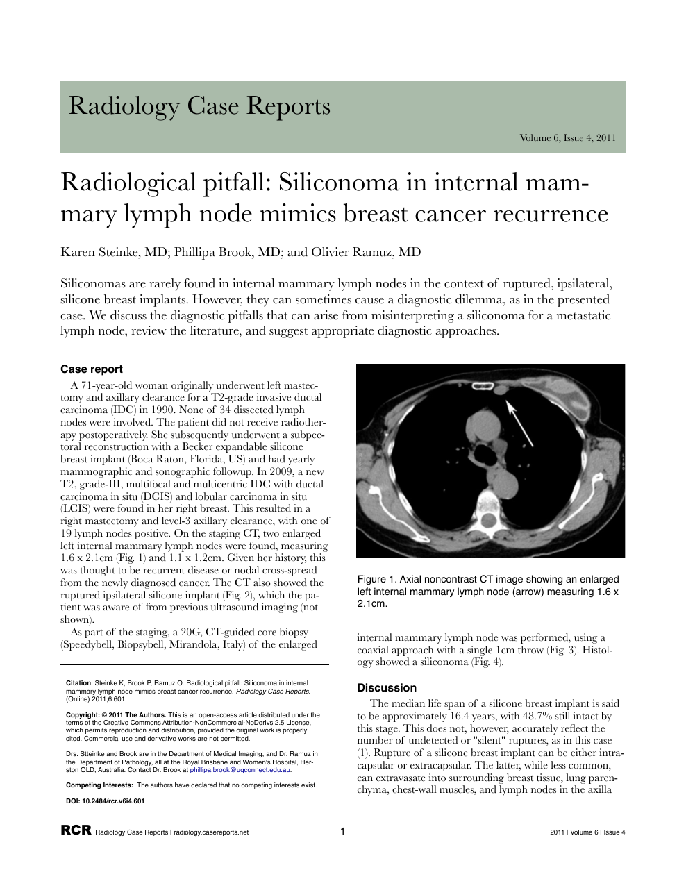 Radiological pitfall: Siliconoma in internal mammary lymph node