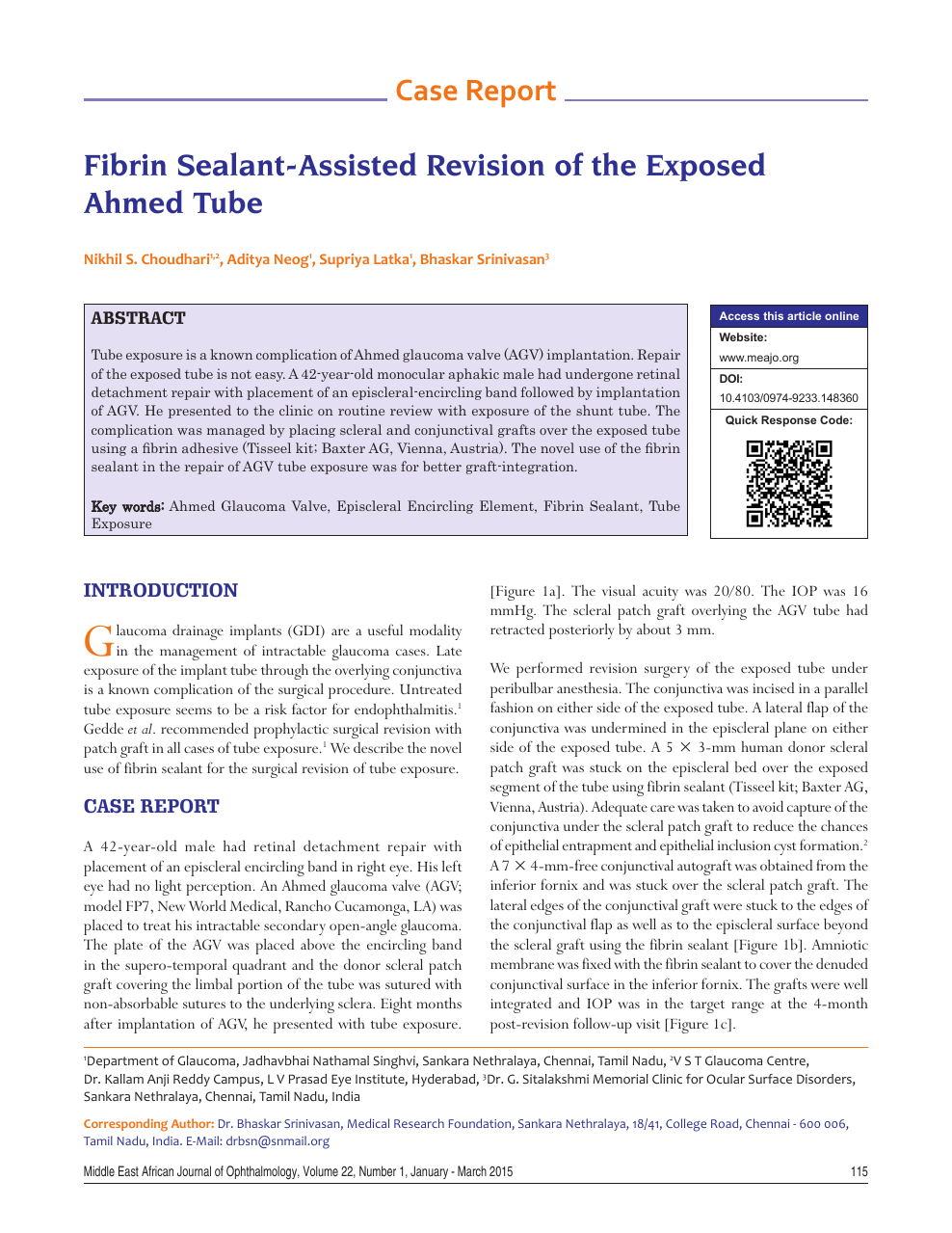 Fibrin sealant-assisted revision of the exposed Ahmed tube
