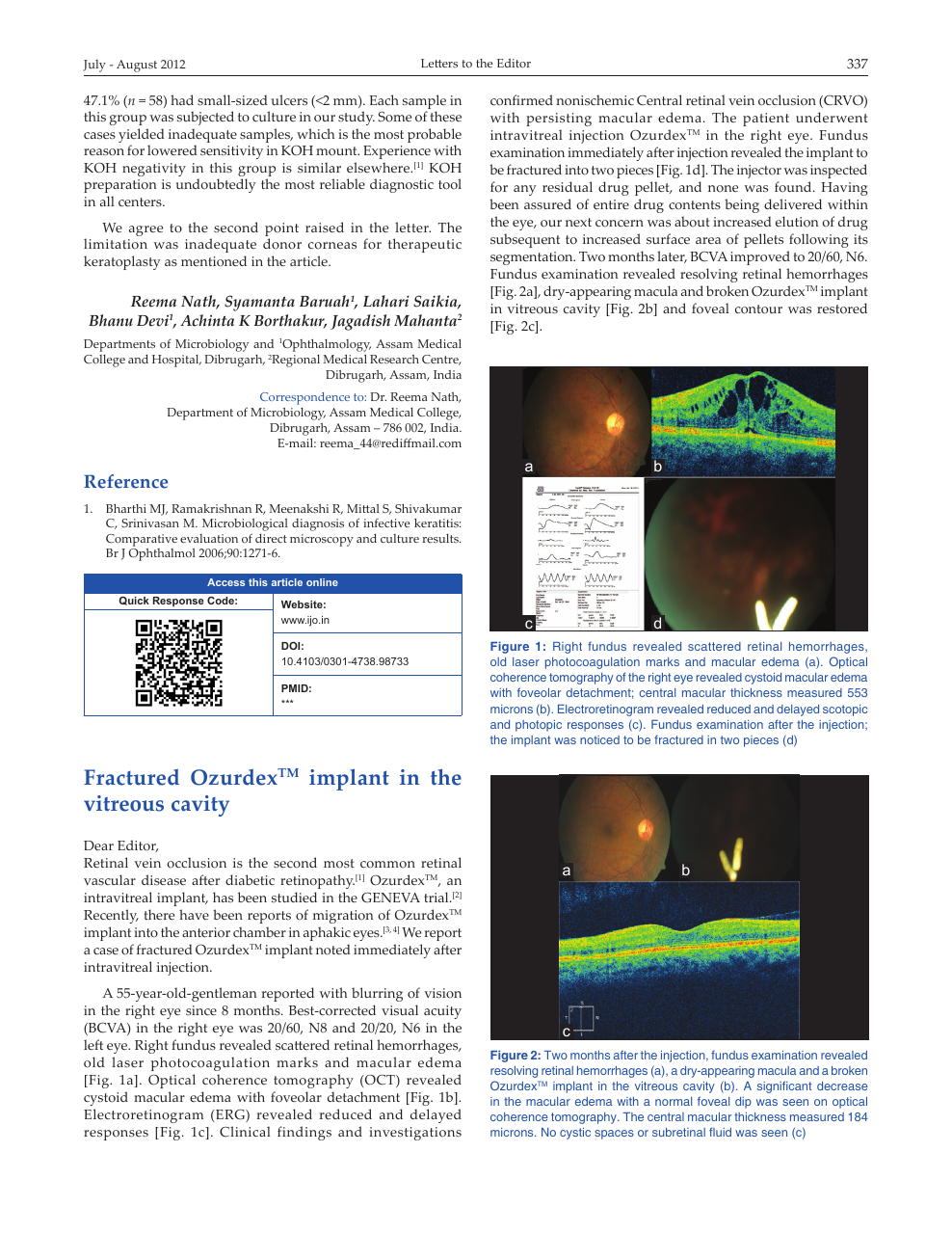 Fractured Ozurdex TM implant in the vitreous cavity – topic