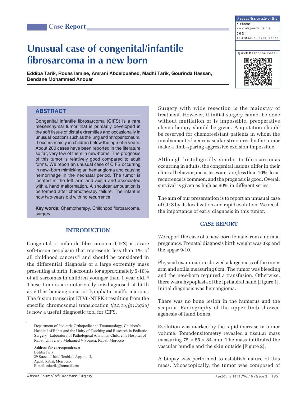 Unusual case of congenital/infantile fibrosarcoma in a new
