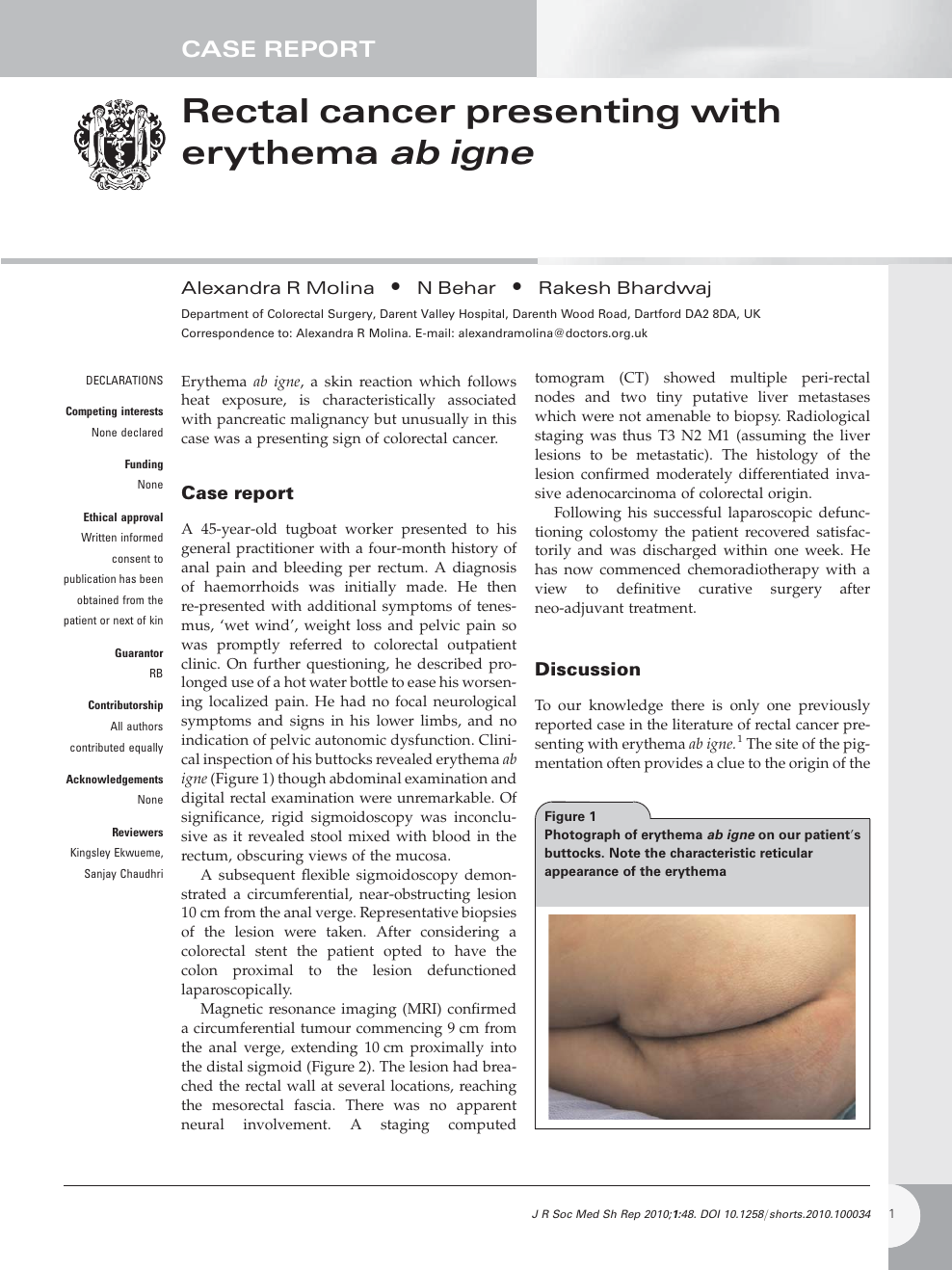Rectal Cancer Presenting With Erythema Ab Igne Topic Of Research Paper In Clinical Medicine Download Scholarly Article Pdf And Read For Free On Cyberleninka Open Science Hub