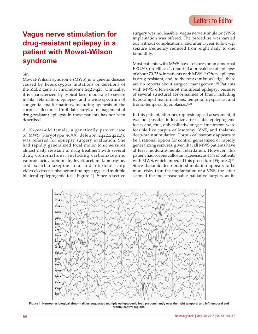 Vagus nerve stimulation for drug-resistant epilepsy in a