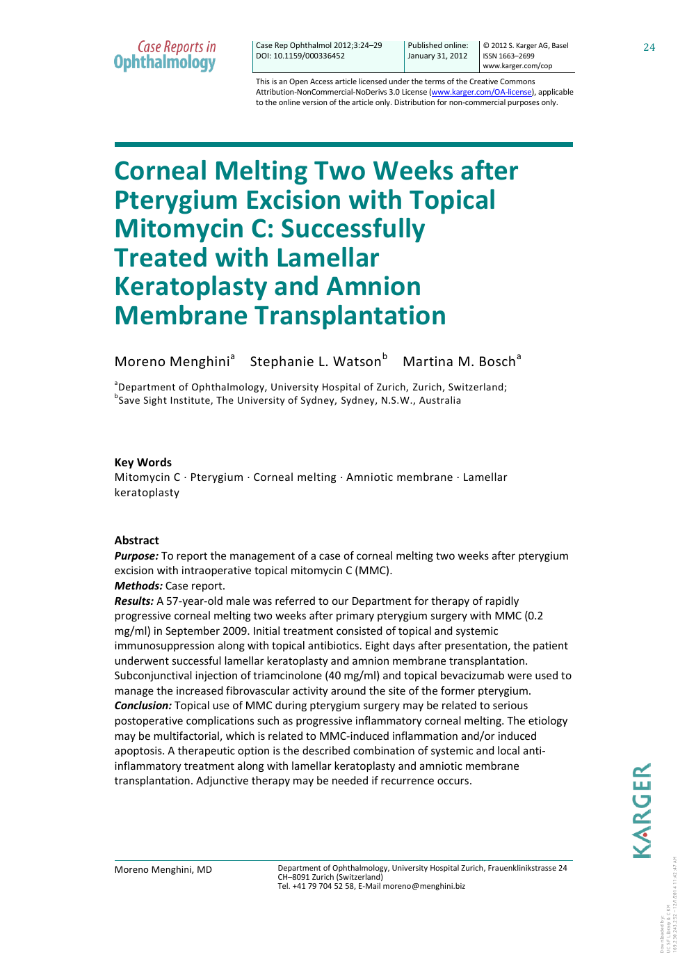 Corneal Melting Two Weeks after Pterygium Excision with Topical