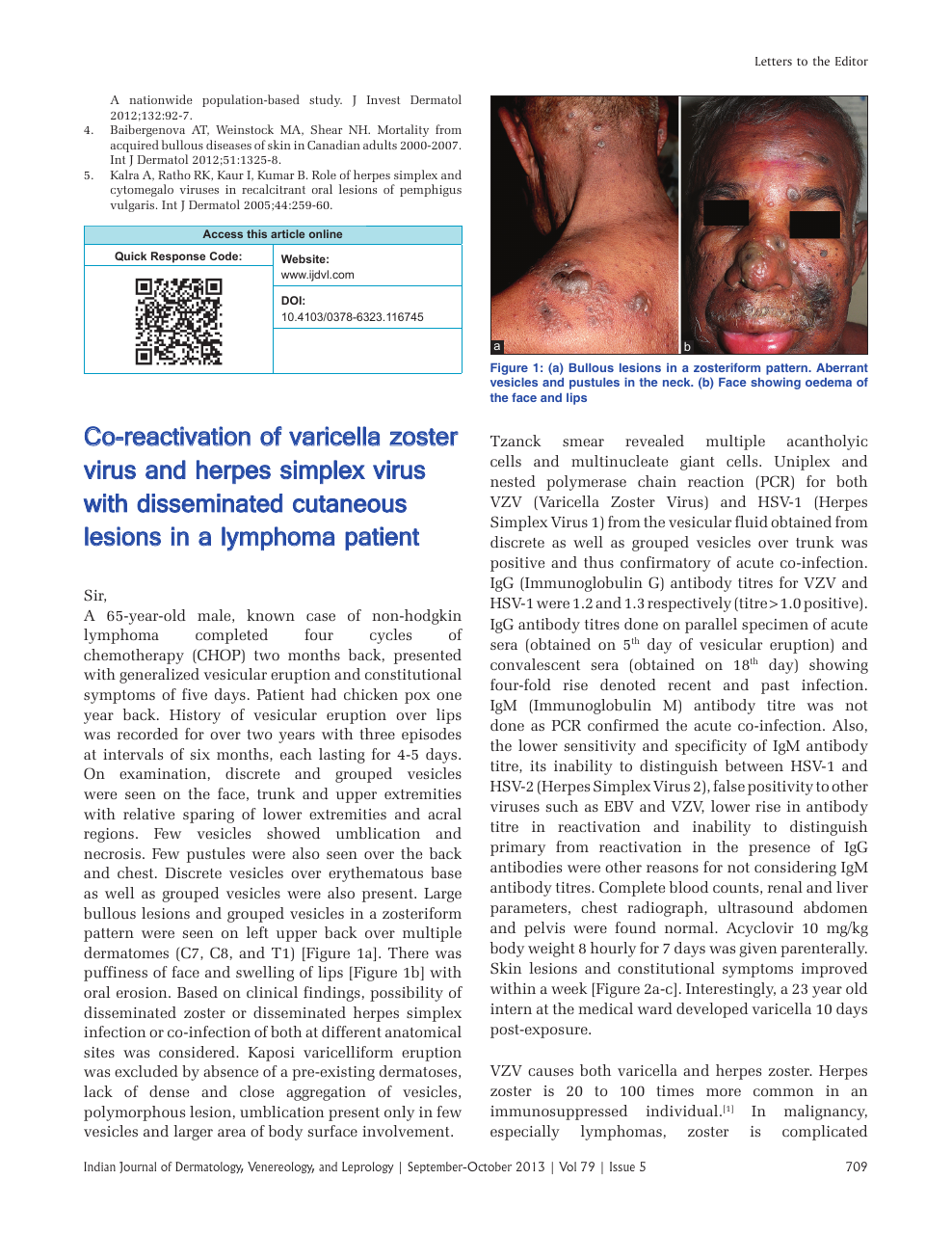 Co-reactivation of varicella zoster virus and herpes simplex virus